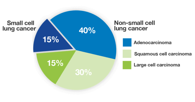 Pie chart showing the four most common types of lung cancer by histology