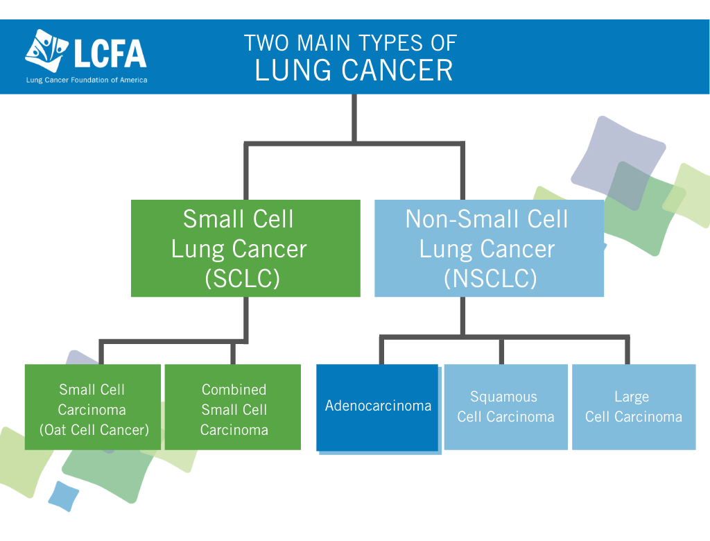 Chart outlining the two main types of lung cancer—small cell and non-small cell—highlighting adenocarcinoma sub-typesubtypes.
