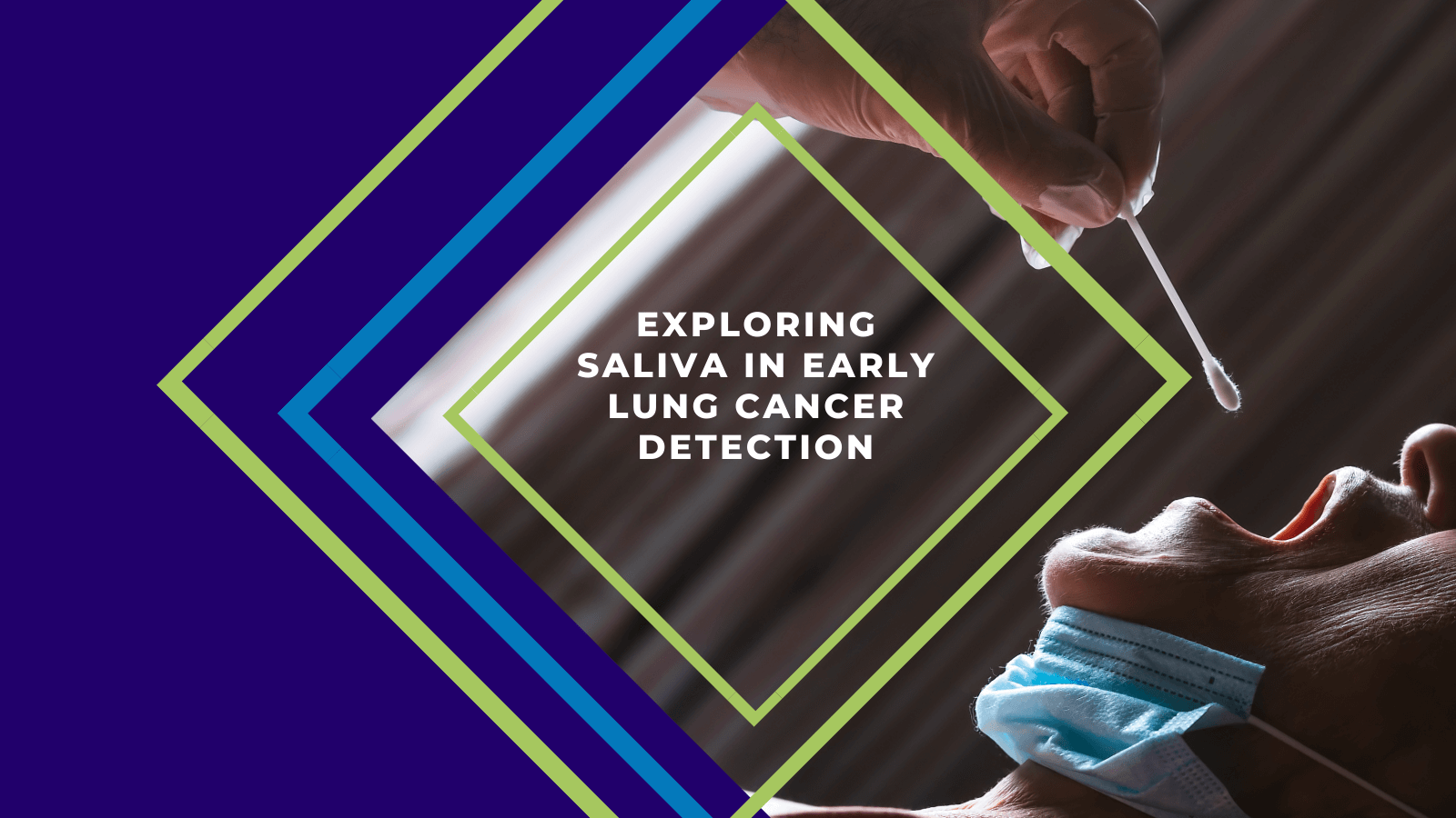 Exploring Saliva in Early Lung Cancer Detection